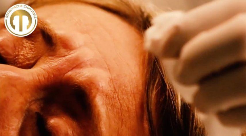 falten-mit-botox-behandeln