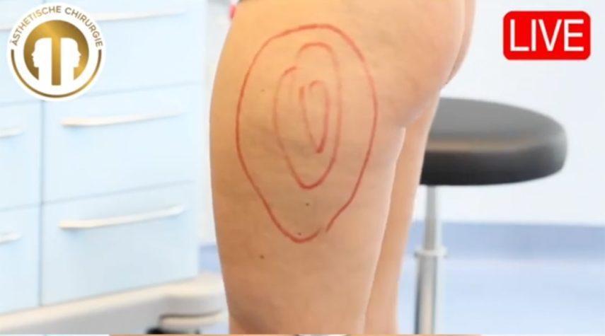 Wie teuer ist eine Fettabsaugung am Bein?