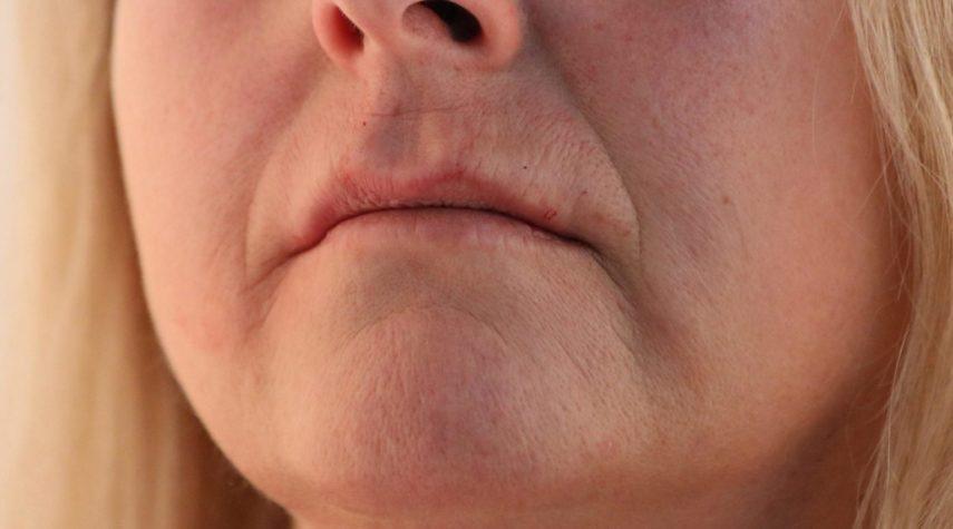 Lippen aufspritzen Bergisch Gladbach