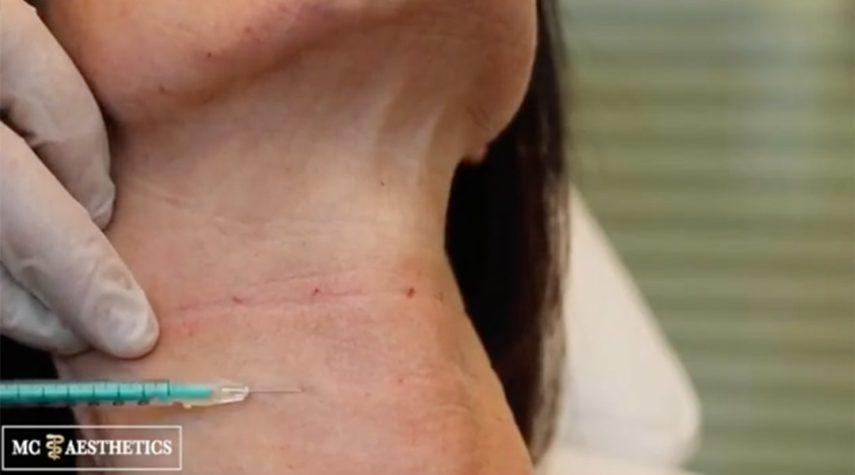 halsfalten-botox hautverjüngung Halsfalten