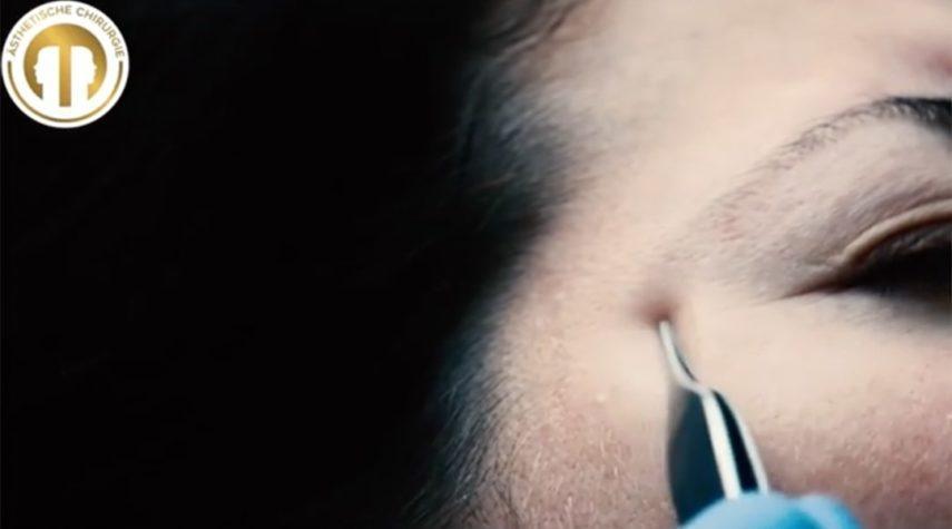 Was ist die Ursache für Augenringe?