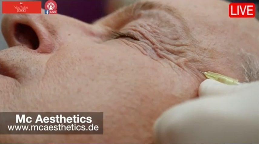 Botox Krähenfüße recklinghausen