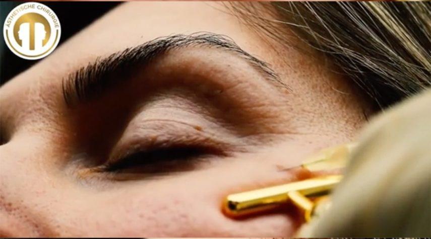 Tränensäcke Behandlung - Hyaluron oder Eigenfett?
