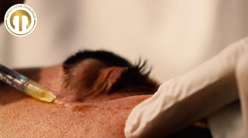 Hyaluron gegen Augenringe