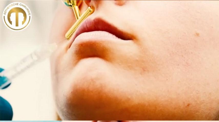 Aufgespritzte Lippen verhärtet , was tun?