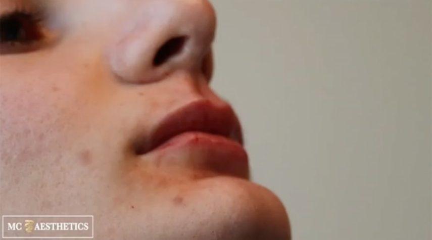 Welche Hyaluronsäure für die Lippen?