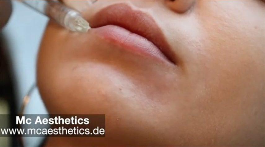 Wie viel ml bei einer Lippen Unterspritzung?