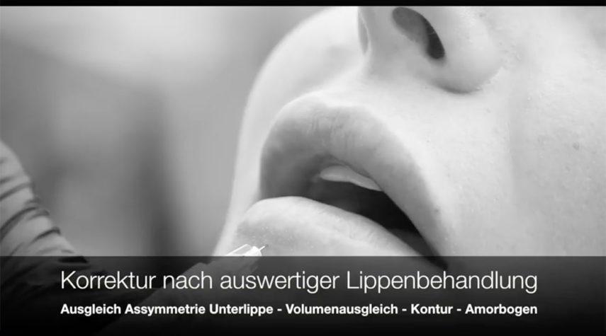 Lippenaufbau Köln Chorweiler