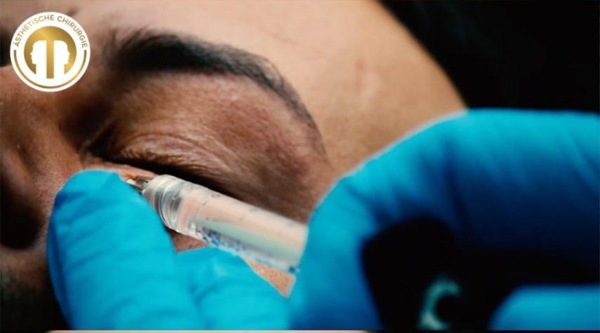Wie entstehen Augenringe Augenringe
