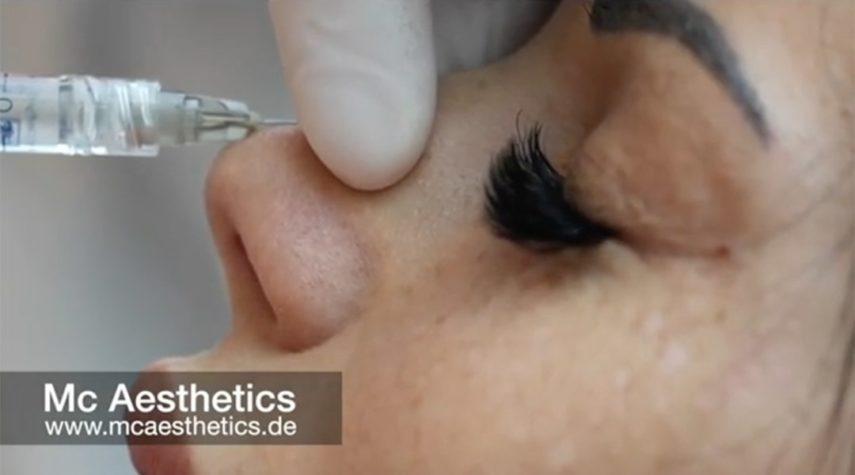 Was kostet eine Nase ohne OP?