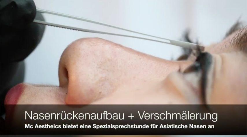 Nasenkorrektur ohne OP Wuppertal