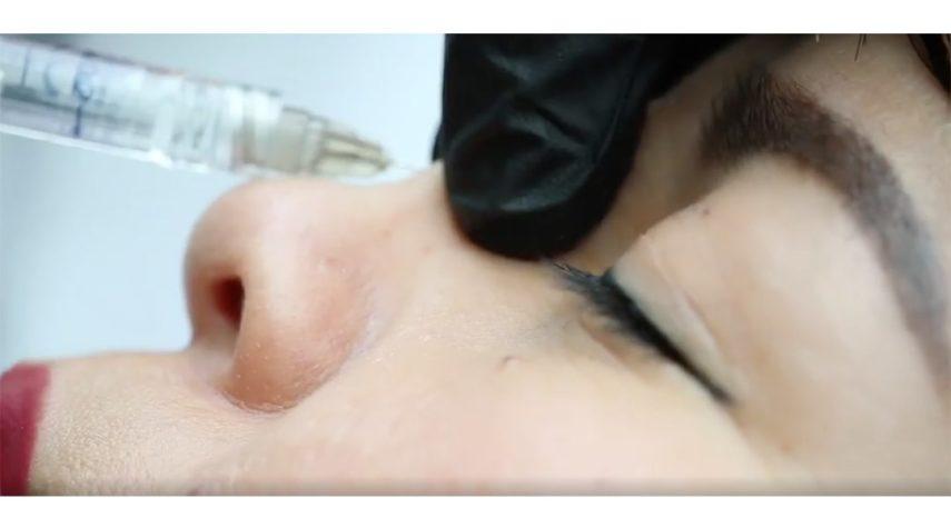 Wie lange hält die Nasenkorrektur mit Hyaluronsäure?