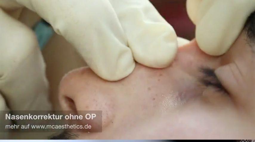 Wie kann man Nasenlöcher verkleinern?
