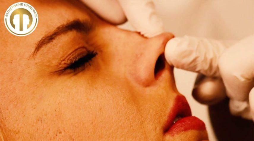 Wie viel kostet es sich die Nase zu verkleinern?