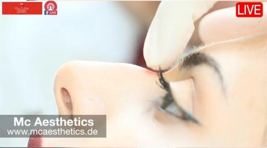 Nasenkorrektur ohne OP München