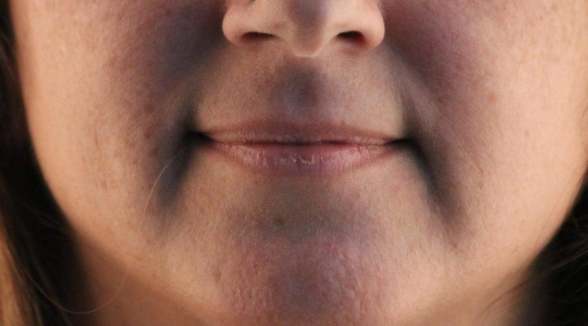 Kann man sich mit 16 die Lippen aufspritzen lassen?