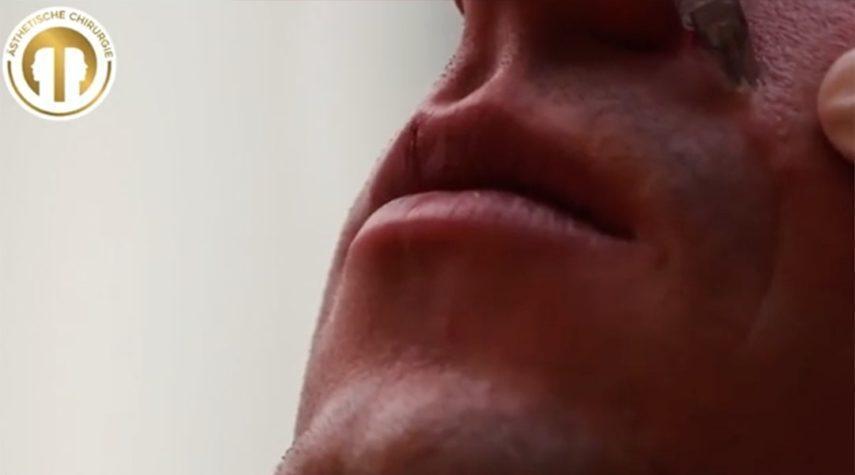 Wo liegt der Preis beim Lippen aufspritzen?