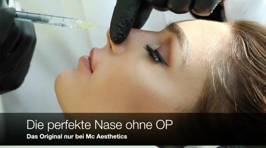 Erfahrungsbericht zur Nasenkorrektur ohne OP