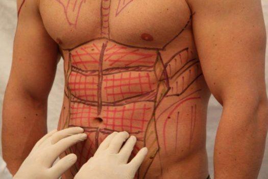 Wie teuer ist eine Fettabsaugung Bauch?