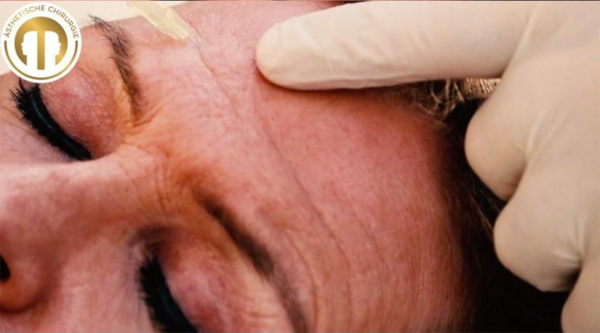 stirn-design-botox-mcaesthetics Denkerfalten entfernen