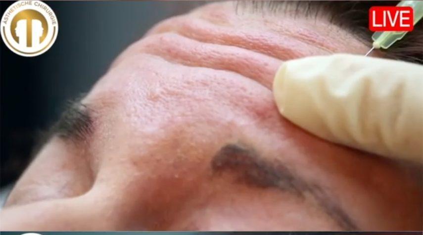 Was kostet eine Behandlung mit Botox?