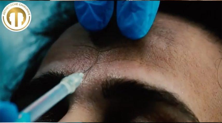 stirnfalten-botox-women Strinfalten entfernen