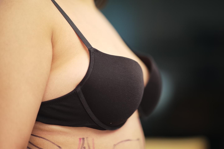 kapselfibrose Wie funktioniert eine Brust OP?