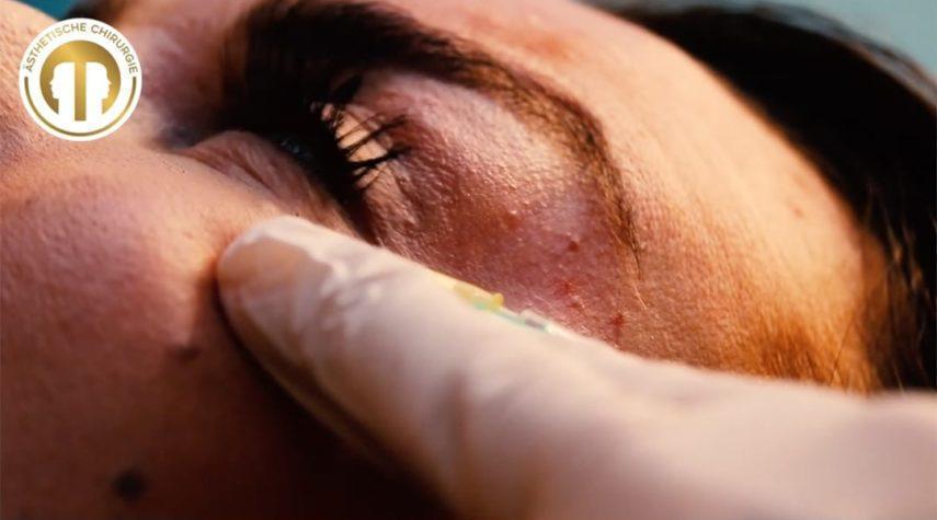 Augenringe entfernen Rheinbach