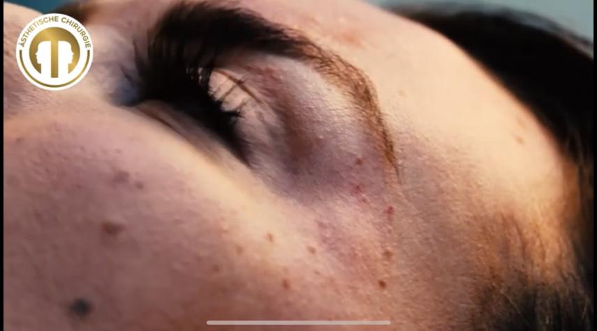 Was kostete eine Hyaluron Nase?