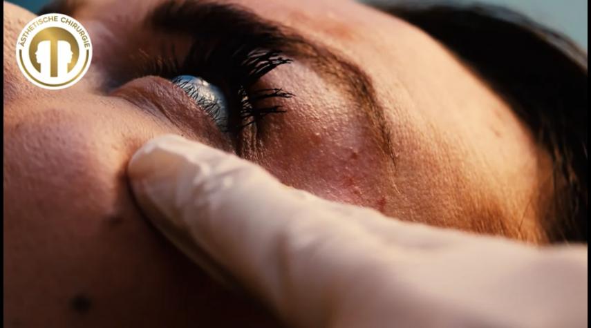 Wie teurer ist die Augenringe Entfernung?