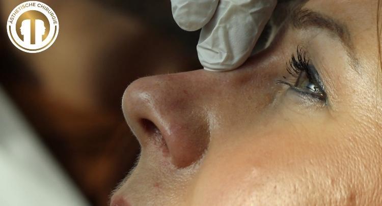 Wo liegen die Grenzen einer Nasenkorrektur ohne OP?